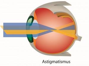 Astigmatismus (Hornhautverkrümmung)